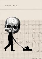 Electrocardiograma (Infarto)